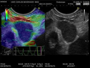 Qualitative EUS-EG of the paraesophageal lymph node. A lymph node that is > 1cm, oval, hypoechoic, and with well-defined margins can be observed in the gray-scale image in the right window. The same image is shown in the left window, but with superimposed elastography that shows the homogeneous blue pattern (type 3). The strain graph with a yellow rectangle from the frame average option can be seen.