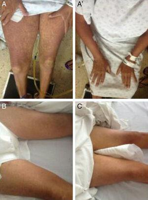 Cutaneous lesions characteristic of DRESS. A, A') Upon admission. B) Progression after 4 days of treatment. C) Day 6 of treatment.