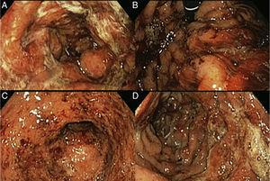 A) Gastric mucosa with edema, erythema, and mucopurulent exudate. B) Retrograde view of the stomach showing oozing hemorrhage. C) Open edematous pylorus covered with mucopurulent exudate and blood flecks. D) Duodenum with friable edematous folds and mucosa, with erosions covered with mucopurulent exudate and blood flecks.