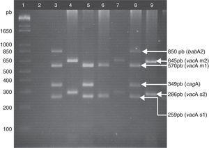 Genotyping of H. pylori. Lane 1: 1kb plus molecular weight marker; lane 2: negative control; lane 3: positive control, DNA from the H. pylori strain J99, vacAs1m1/cagA+/babA2+ genotype; lanes 4, 7, and 9: clinical samples of vacAs2m2/cagA−/babA2− genotype; lane 5: clinical sample of vacAs1m1/cagA+/babA2− genotype; lane 6: clinical sample of vacAs1m1/cagA−/babA2− genotype; lane 8: clinical sample of vacAs1m1/cagA+/babA2+genotype. Agarose gel at 2.5%.