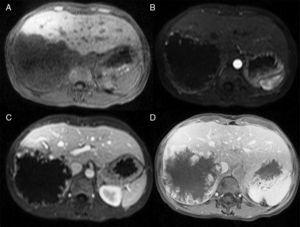 Gadolinium-magnetic resonance image of a GHH in the right lobe. Images show a progressive centripetal nodular enhancement across the simple (A), arterial (B), portal (C), and late (D) phases.