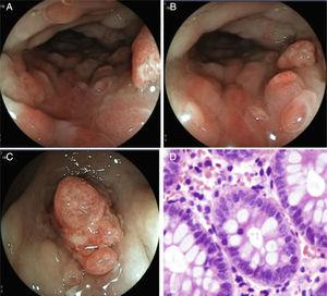 A and B) the descending colon showing the inflammatory changes, edema of the mucosa, patchy erythema, pseudopolypoid formations, and vascular pattern loss. C) Lesion with a polypoid aspect in the sigmoid colon with loss of mucosal continuity, edema, and vasculature alteration. D) Photomicrography shows abundant eosinophils in the lamina propria, up to 70 per field at a high magnification.