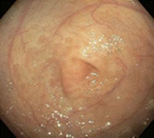 Endoscopic image of a patient with CMPA that shows erythema of the mucosa at the level of the antrum.