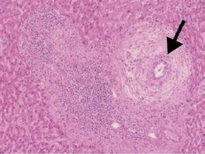 "Severe periductal ""onion skin"" fibrosis, characteristic of PSC."