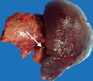 The surgical specimen from the distal pancreatectomy with splenectomy. The tip of the arrow points to a 2.8 x 2.1cm lesion toward the tail of the pancreas.