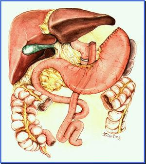 Anatomic aspect of banded Roux-en-Y gastric bypass (Capella).