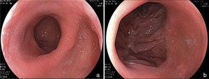 Endoscopic aspect of the Roux-en-Y gastric bypass. a) Gastric pouch. b) Gastrointestinal anastomosis.