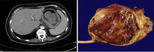 Case 2. The abdominal CT reported a pedunculated neoplastic lesion dependent on the gastric fundus. The surgical specimen showed an IFP of 9.1×6.3cm.