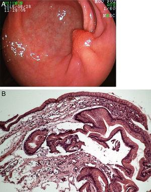 A) Follow-up endoscopy 6 months after ESD, demonstrating fold convergence and an aberrant polypoid nodule at the scar. B) Histology revealed regenerative hyperplastic tissue.