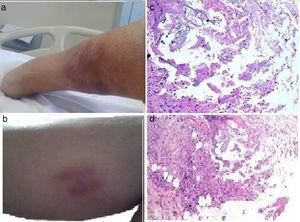 a and b) Image of the lower limb showing painful, purplish, erythematous, subcutaneous, nodular lesions consistent with panniculitis, some with oleous secretions. c and d) Pathologic anatomy image (hematoxylin-eosin) of cutaneous lesions showing fibrosis covering some fatty zones with inflammatory cells and other histiocytes, as well as areas of non-cellular amorphous basophilic material. Fat necrosis with difficult-to-distinguish adipocytes and microcalcifications can be seen in other areas.