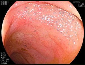 Duodenal nodular mucosa with atrophic aspect.