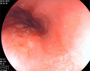 An ulcer measuring approximately 2cm, with raised edges covered with a scant quantity of fibrin, and another smaller mirror-image ulcer are shown.