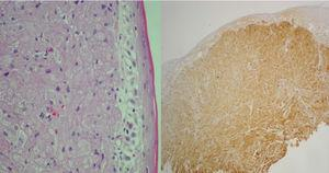On the left, hematoxylin and eosin stain show abundant eosinophilic granules. On the right, immunohistochemistry shows S-100 protein expression.