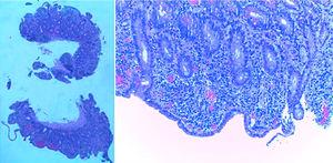 Biopsies of the small intestine showing villous atrophy and chronic lymphocytic infiltration of the lamina propria (hematoxylin and eosin x15).