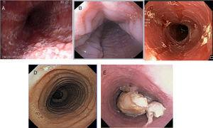 Inflammatory phenotype (A: whitish and mottled&#59; B: longitudinal grooves&#59; and C: mucosal edema [crepe paper]) and fibrostenotic phenotype (D: rings&#59; E: stricture with food impaction) of eosinophilic esophagitis at endoscopy.