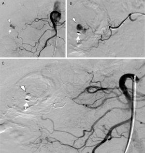 A) Selective digital subtraction angiography of the superior mesenteric artery that shows the presence of contrast extravasation (arrowhead) from the vasa recta of a distal arcade of the right colic artery, next to the only remaining endoscopic clip (arrow). B) Super-selective catheterization of the distal arcades of the right colic artery with contrast extravasation from the vasa recta (arrowhead) near the endoscopic clip (arrow). C) Final selective digital subtraction angiography of the superior mesenteric artery that shows the complete exclusion of the vasa recta of a distal arcade of the right colic artery embolized by n-butyl cyanoacrylate with the absence of contrast extravasation (arrowhead) near the endoscopic clip (arrow).