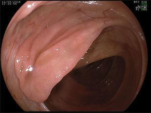 Serrated polyp located in the ascending colon. Vascular pattern loss is a characteristic unique sign of the presence of a serrated polyp.