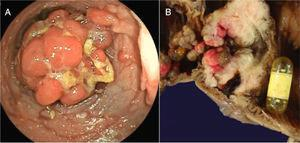 A) Colonoscopy showing the presence of a large polyp. B) Surgical specimen that shows the intestinal lumen with countless polyps and the video capsule obstructing the lumen at the stenosed zone in the ileum.