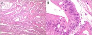 Histopathologic study of the lesion. A) Low-magnification photomicrograph showing the numerous Peutz-Jeghers polyps that have the characteristic thick bands of smooth muscle between the islets of epithelial tissue. B) High-magnification photomicrograph of the largest polyp with high-grade dysplasia.