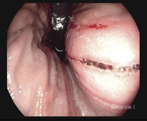 Retroflexed view of linear ulcers with hematin on their surface, Forrest IIc.