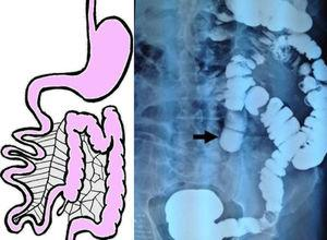 Barium enema. The cecum, ascending colon, transverse colon, and descending colon are found on the left side of the abdomen, consistent with non-rotation intestinal malrotation.