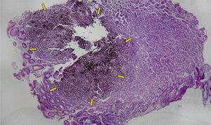 Oxyntic gastric mucosa. Partial infiltration with loss of architecture of the foveolae and glands from neoplastic cells with a diffuse, discohesive pattern.