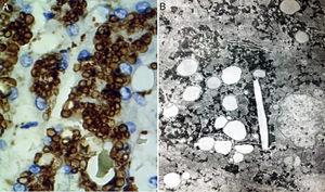 A) Immunohistochemical reaction showing lipid droplets inside lysosomes (cathepsin D, original magnification x400). B) Photomicrograph showing lipids surrounded by simple lysosomal membrane that reveals its lysosomal nature, as well as cholesterol crystals (electron microscopy, original magnification x2,000).
