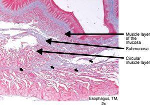Rupture of the circular muscle layer, with connective tissue proliferation (short arrows).