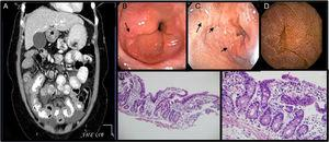 A. Ascites, diffuse and concentric thickening of the small bowel. 1B and 1C. UGIE with changes suggestive of eosinophilic esophagitis and duodenitis. 1D. Capsule endoscopy: mucosa with edema and erythema that produces thickening of the villi. 1E Ileum (H&E-x100). Preserved ileal mucosa with slightly enlarged and flattened villi with lymphocytic inflammatory infiltrate, the presence of a greater number of eosinophils and crypts with some branches. 1F. Ileum (H&E-x400). Ileal mucosa at a greater magnification showing a larger number of lymphocytes and eosinophils than usual in the lamina propria, which carry out exocytosis into the superficial epithelium and crypts.
