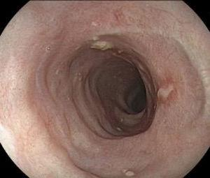Endoscopic control at 90 days, with no stricture or residual lesion after corticoid therapy.