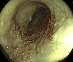 Digital chromoendoscopy: FICE.