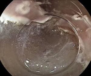 Endoscopic dissection of the submucosa.
