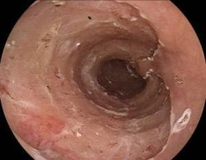 Esophagus after endoscopic dissection of the submucosa.