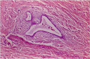 Medium magnification photomicrography (H&E) with endometrial glands between the muscle fibers of the appendiceal wall.