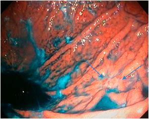 Poorly-differentiated adenocarcinoma in the body. Chromoendoscopy with indigo carmine staining.