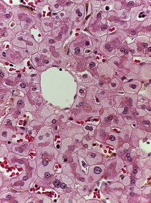 Liver biopsy with hematoxylin-eosin staining showing perivenular hepatocytes with clear, granular cytoplasm and iron deposits.