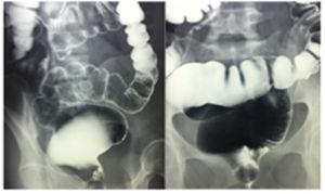 Barium enema showing megarectum.