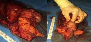 Specimen from the right hemicolectomy, with the cecum occupied by the tumor that retracted the ileum and produced the invagination.