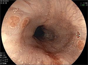 Endoscopic image of IP with FICE.