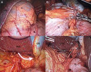 A) Bulging over the hepatogastric ligament (lesser sac). C: cecum; LHL: left hepatic lobe; S: stomach. B) Hernia of the cecum and ileocecal valve through the foramen of Winslow (arrows). C: cecum; D: duodenum; FW: foramen of Winslow; GB: gallbladder, ICV: ileocecal valve, TI: terminal ileum. C) View of the foramen of Winslow after the reduction of the herniated content (arrow). D: duodenum; FW: foramen of Winslow; GB: gallbladder; RHL: right hepatic lobe. D) Surgical closure of the foramen of Winslow. CFW: closed foramen of Winslow; D: duodenum; RHL: right hepatic lobe.