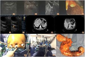 A1-A4) Endoscopic ultrasound images. B1-B2) Abdominal ultrasound. C1-C2) Contrast-enhanced abdominal tomography. D1-D2) Positioning of the trocars and docking of the robot. E) Surgical specimen.