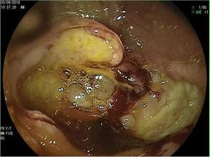 An almost completely ulcerated stricture in the third part of the duodenum.