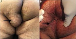 (A) A well-defined, 6×6cm tumor in the left buttock and perineum. The black arrow points to the external orifice of the perianal fistula. (B) The perianal wound was healed by secondary intention, at the follow-up at 12 months. The black arrow points to the scar of the completely healed perianal fistula's external orifice.