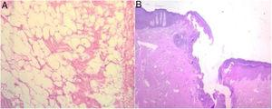 Histologic images. (A) Mature white adipose tissue with no atypia. (B) The fistulous tract, with mostly variable scarring and inflammatory and granulation tissue.