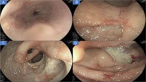 A) Linear ulcers, aphthous erosions, and notching of Kerckring's folds in the esophagus. B) Severe inflammatory changes that affect the mucosa of the corpus, with signs of erythema, edema, nodularity, and deep, segmental ulcers. C) View of the gastric antrum, showing a deep ulcer affecting more than 70% of the circumference, with punched-out areas, pyloric deformity, and mucosal bridging (black arrow). D) Severe inflammatory changes in the duodenum, with serpiginous ulcers and a fibrin-covered dominant ulcer in DII.