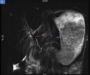 Magnetic resonance enterography identifying severe inflammatory changes and thickening of the stomach (short arrow), as well as the incidental identification of a severe stricture, with an inflammatory aspect, at the confluence of the hepatic ducts and the proximal common bile duct, consistent with primary sclerosing cholangitis (long arrow).