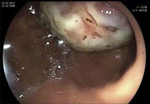 Endoscopic image showing the tumor in the gastric antrum.