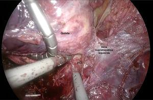 A cyst firmly attached to the inferior vena cava was found during the surgery.