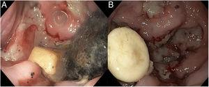 A) Endoscopic image of the epiphrenic diverticulum containing food detritus (plum seed). B) Endoscopic image of the epiphrenic diverticulum containing a foreign body (pill).