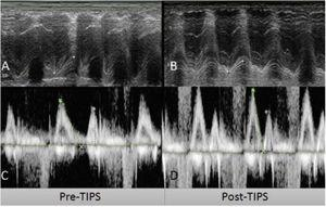 Pre-transjugular intrahepatic portosystemic shunt (TIPS) (A, C) and post-TIPS (B, D) echocardiogram measurements. A) Pre-TIPS TAPSE of 18.8mm. B) Post-TIPS TAPSE of 14.4mm. C) Pre-TIPS E/A wave ratio of 1.2. D) Post-TIPS E/A wave ratio of 1.54. TAPSE: tricuspid annular plane systolic excursion.
